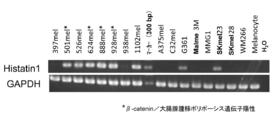 WO2012023588A1 - 悪性黒色腫の...
