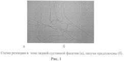 RU2549297C1 - Малоинвазивный артродез подтаранного сустава ...