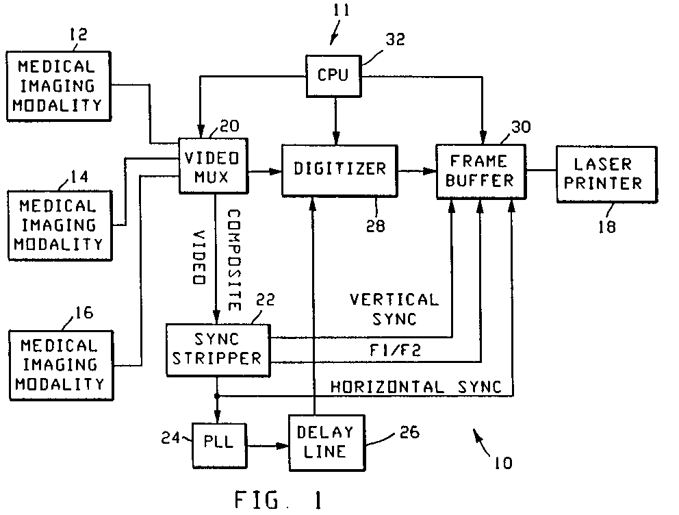 Ep0599084a1 Sync Stripper Circuit Google Patents