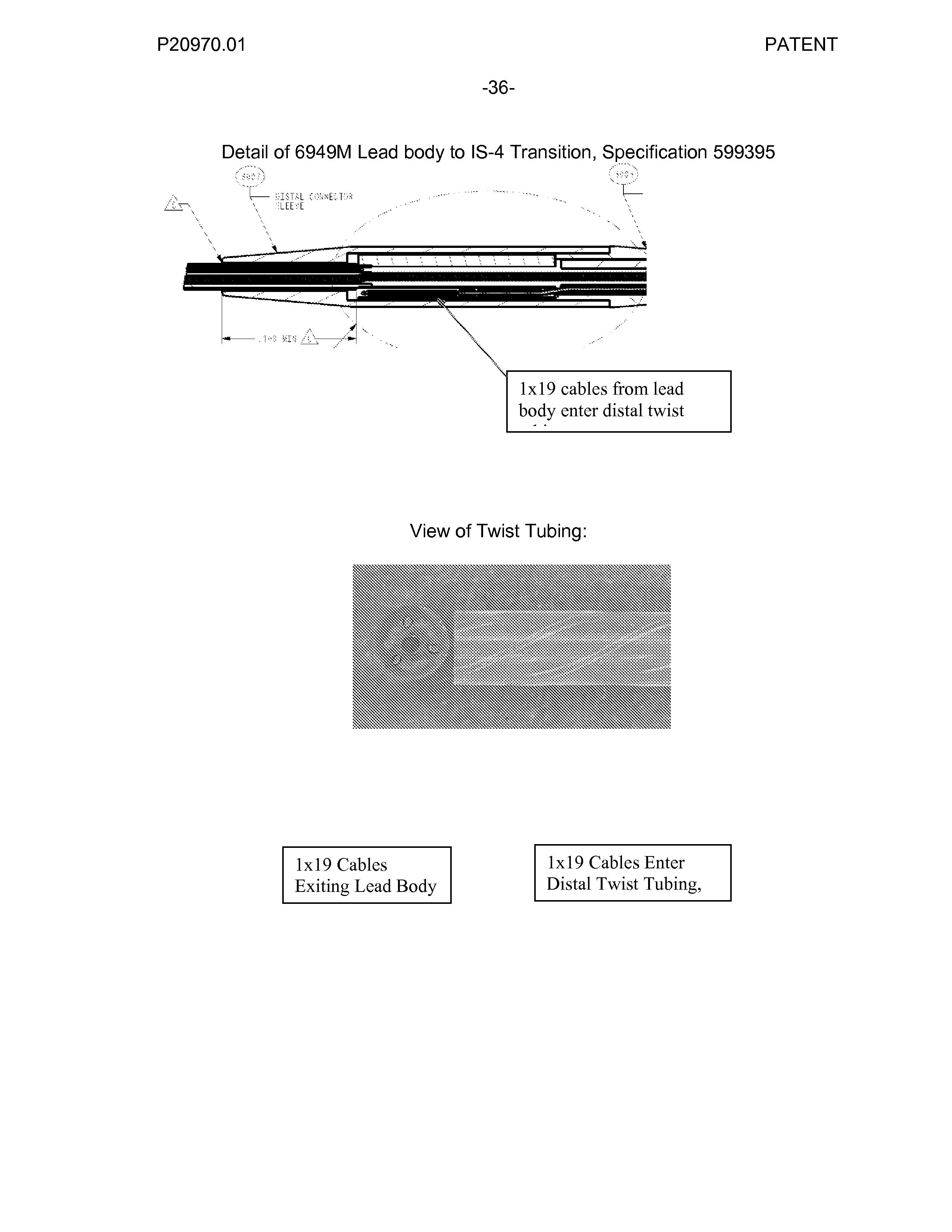 Figure US20070276458A1-20071129-P00018