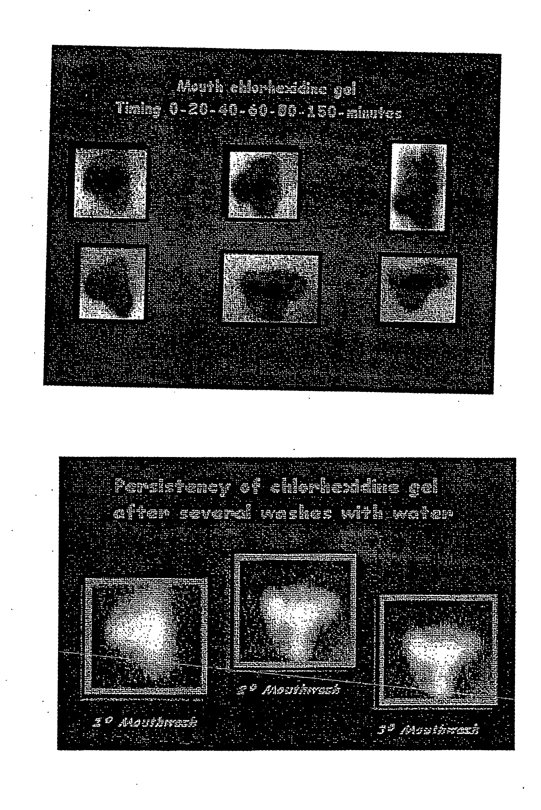 Figure US20060160045A1-20060720-P00002