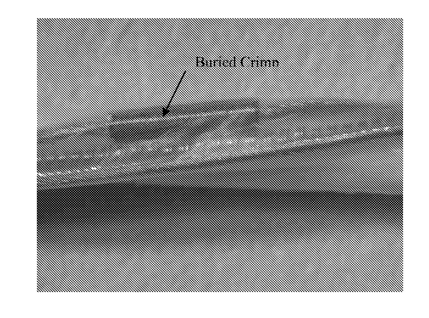Figure US20070276458A1-20071129-P00008