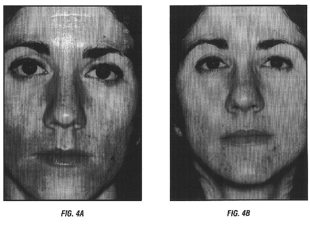 US6710076B2 - Hydroxy-kojic acid skin peel - Google Patents