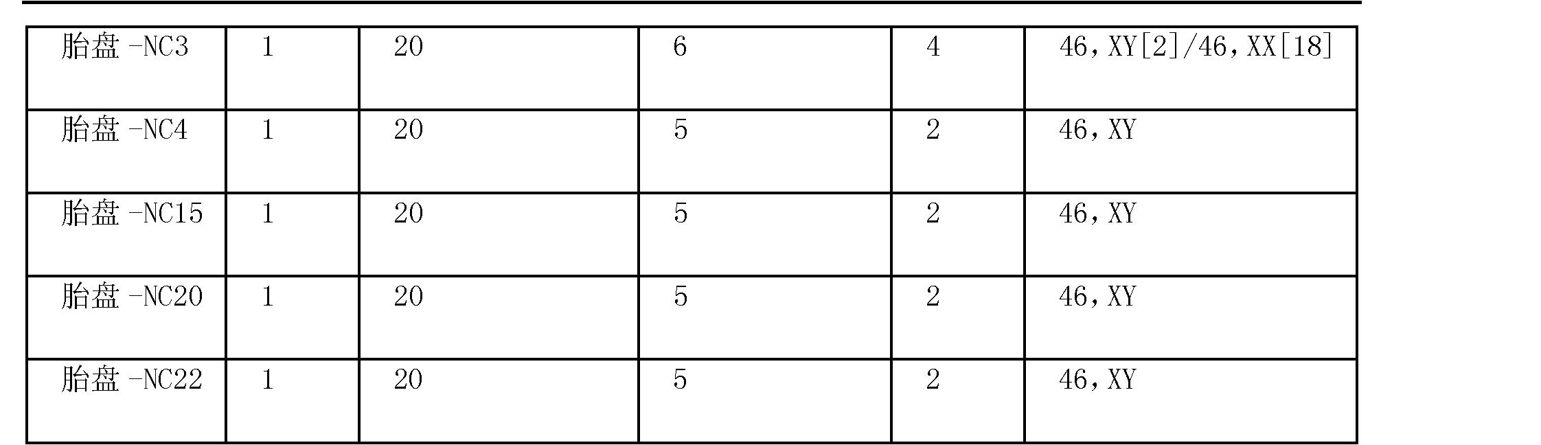 Figure CN102498204AD00361