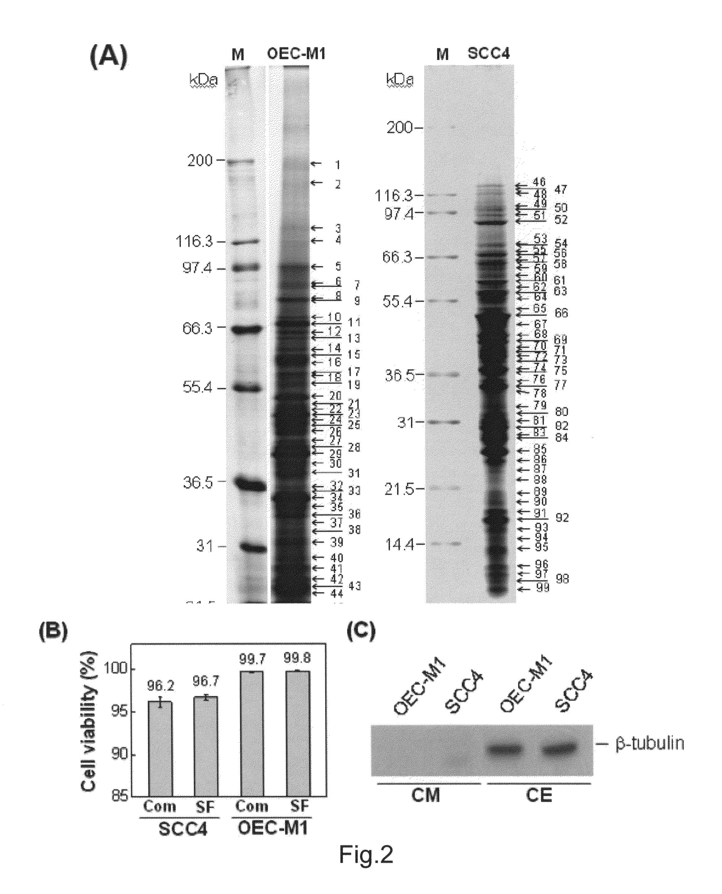 adenoma de próstata 116 mm 2