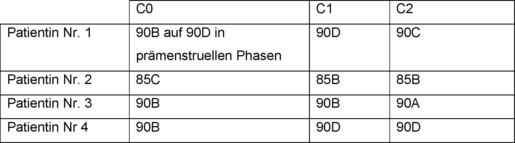 Beispiel 85c brust
