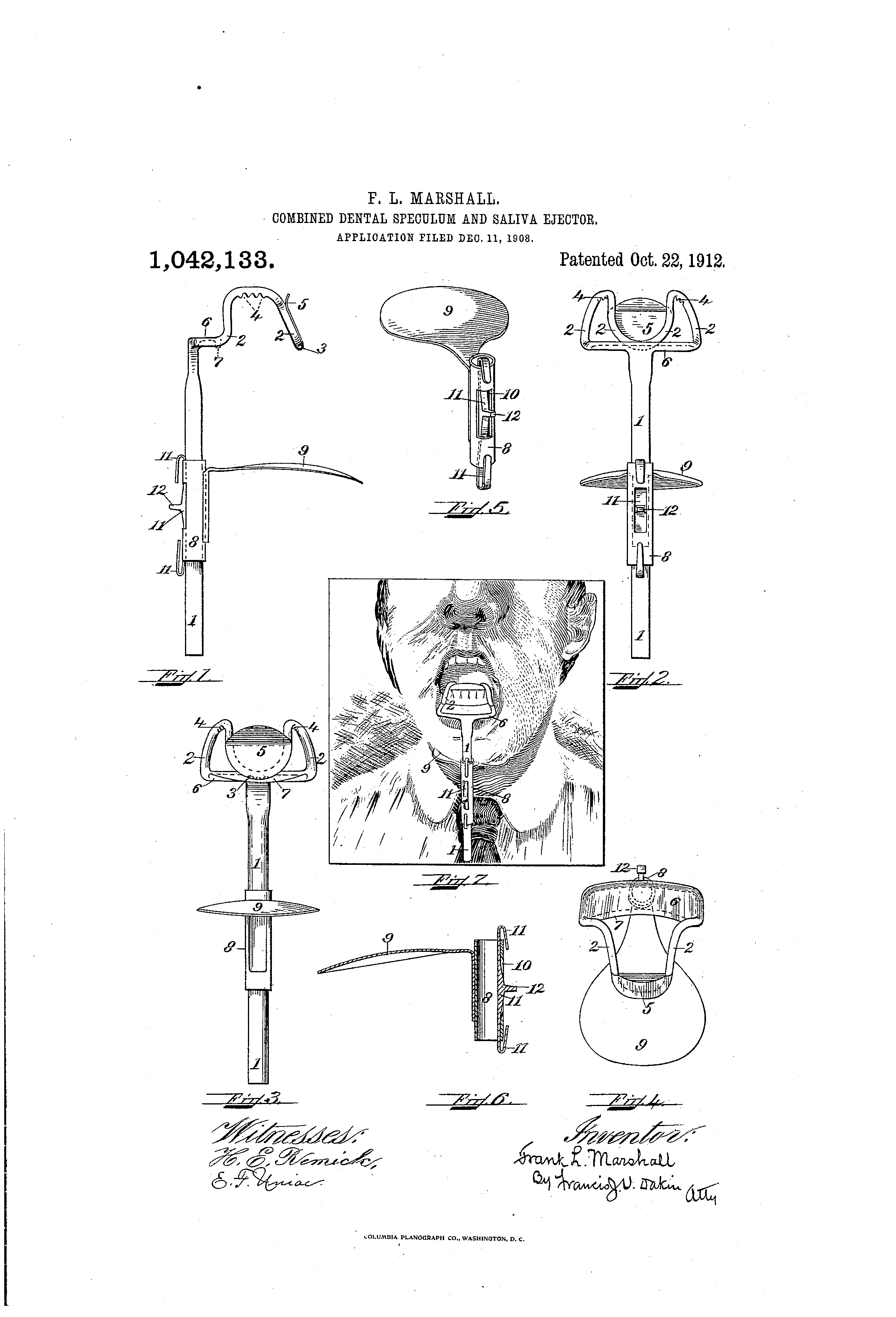 patent us combined dental speculum and saliva ejector patent drawing