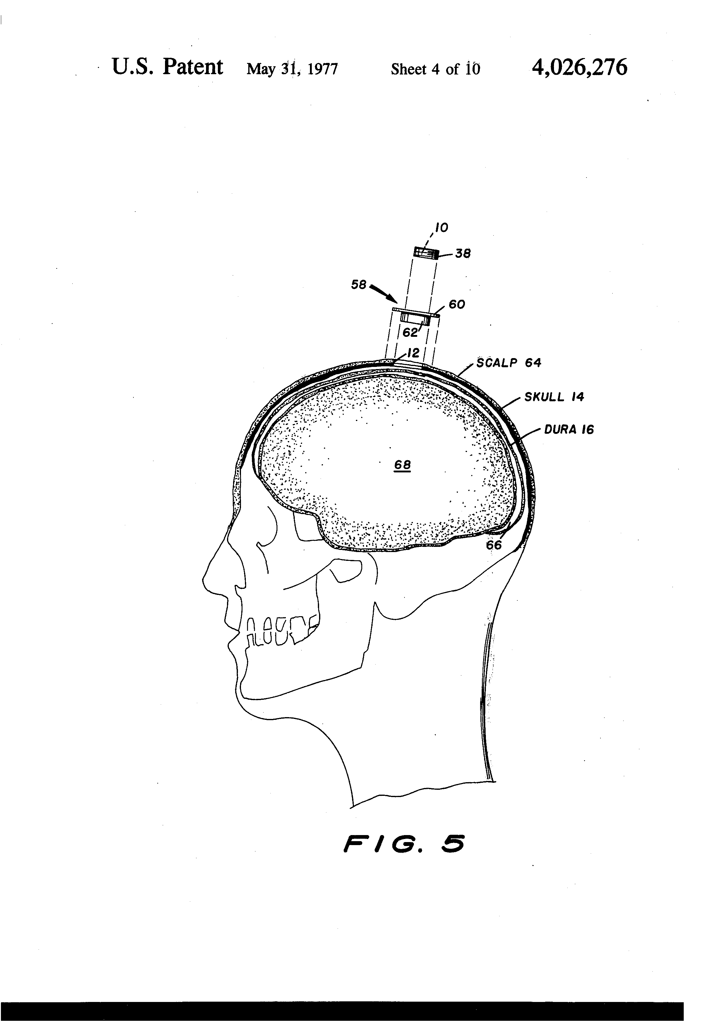 patent us4026276 - intracranial pressure monitor