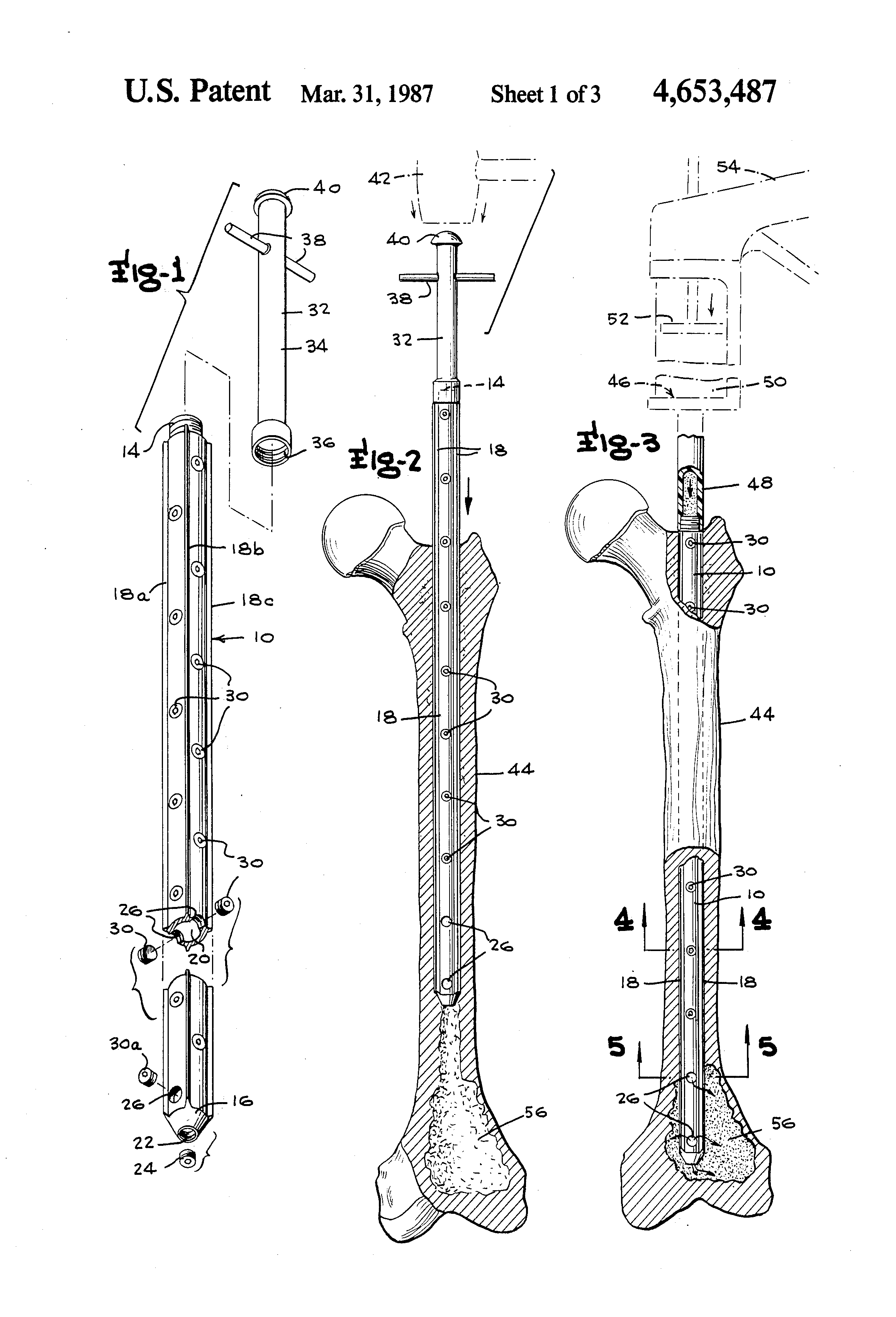 Patent US4653487 - Int...