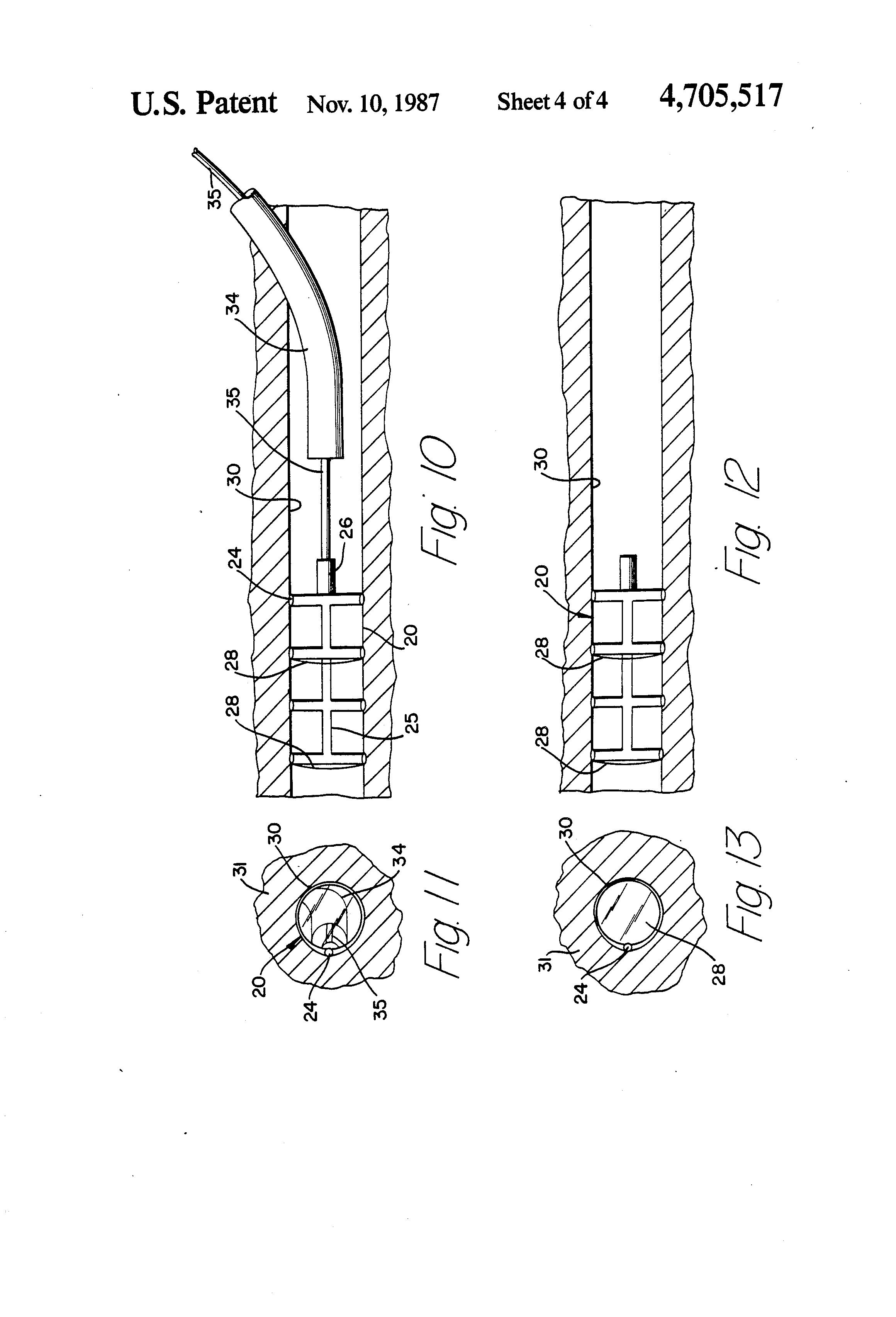 patent us4705517