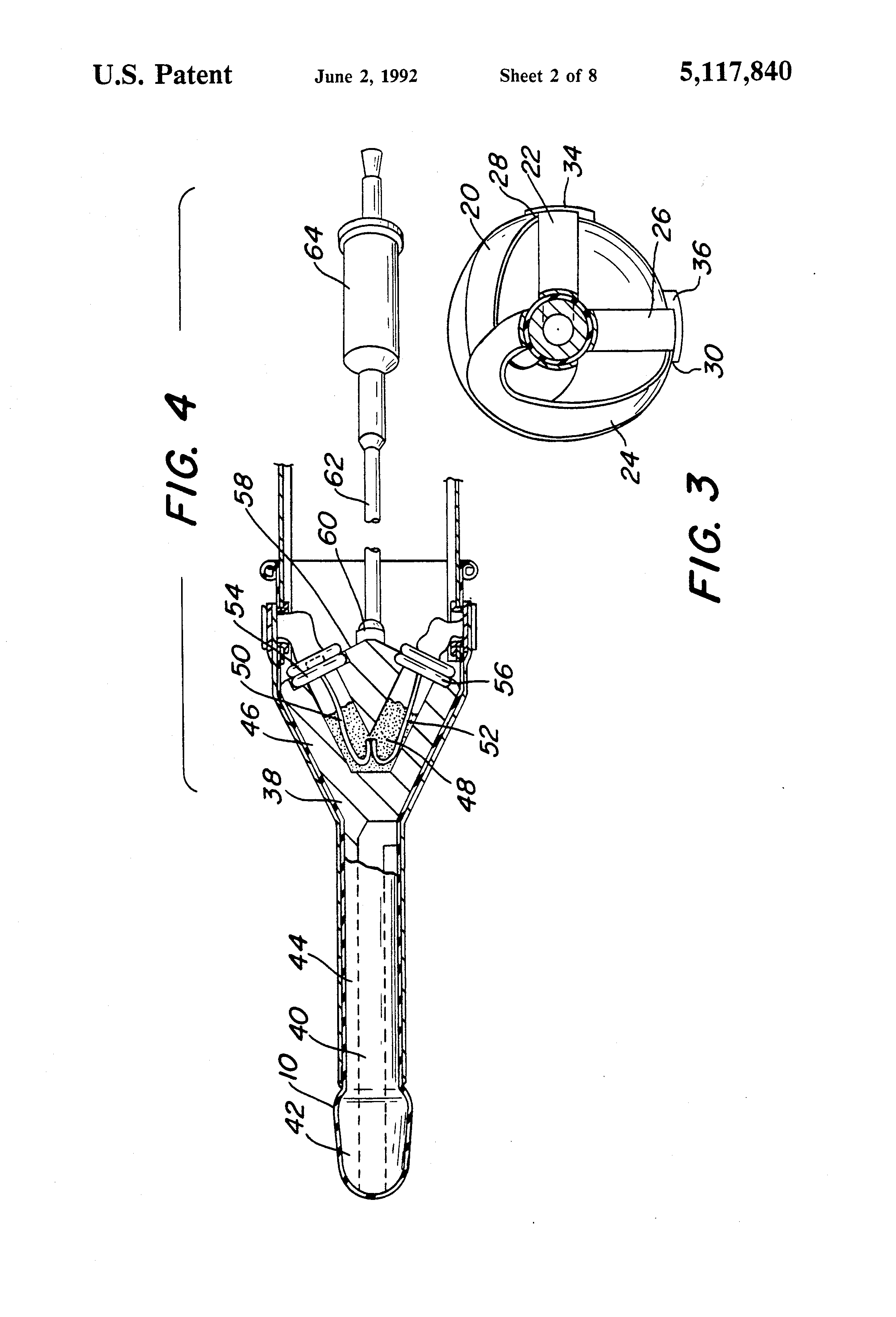 Anus define patent patent airway looking