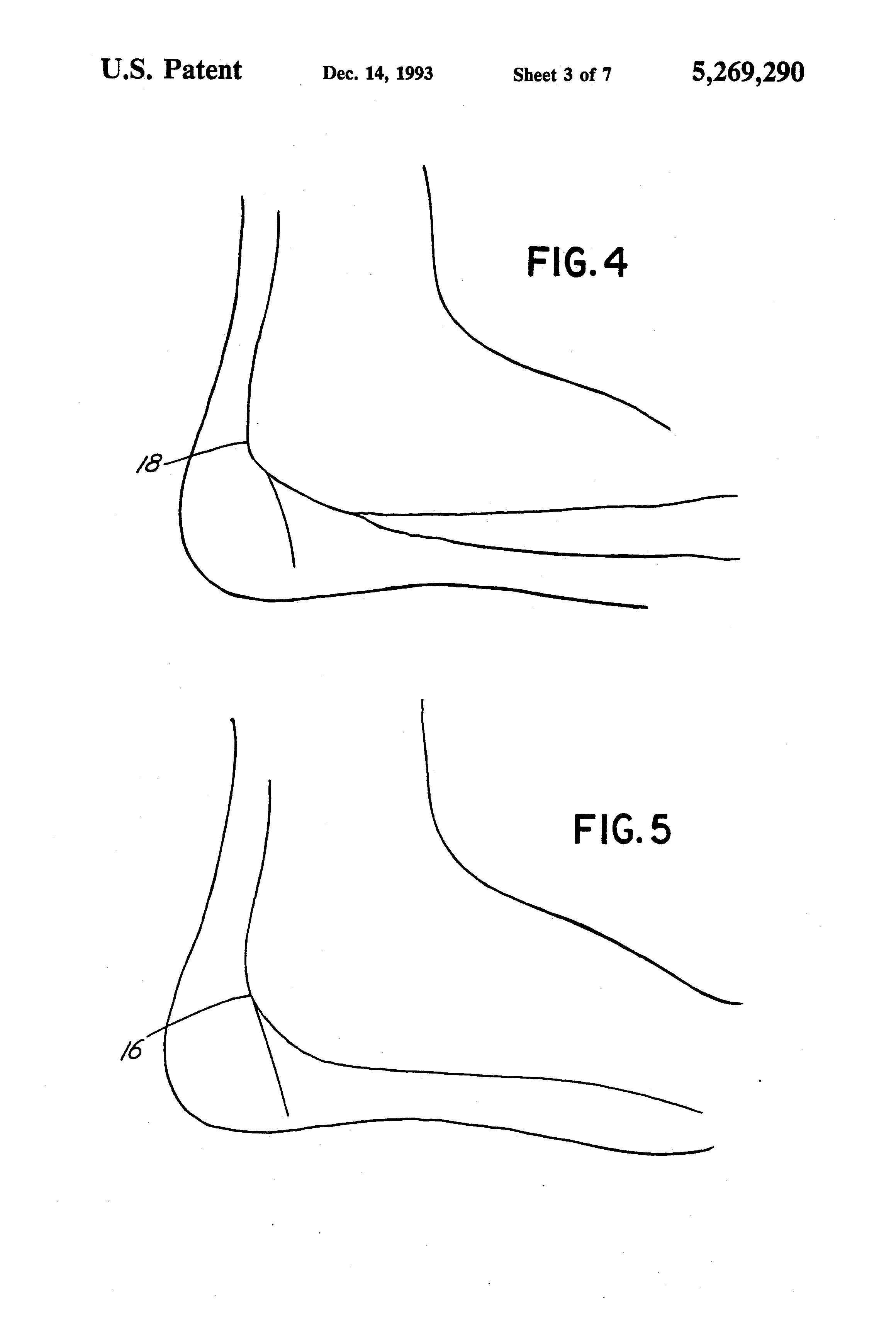 Morton neuroma