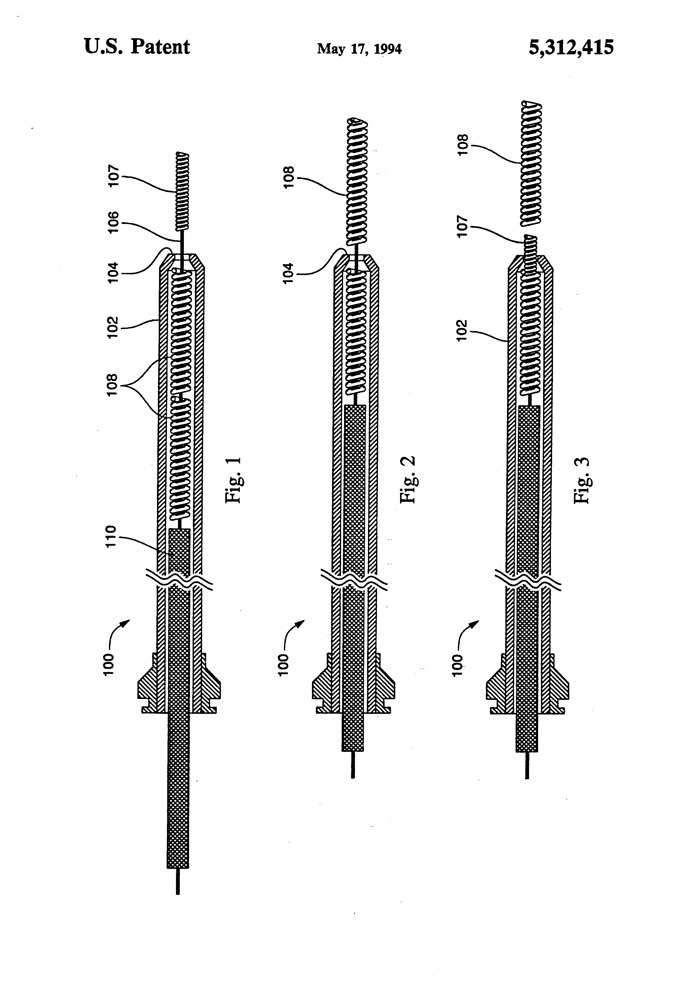 brevet us5312415 assembly for placement of embolic coils