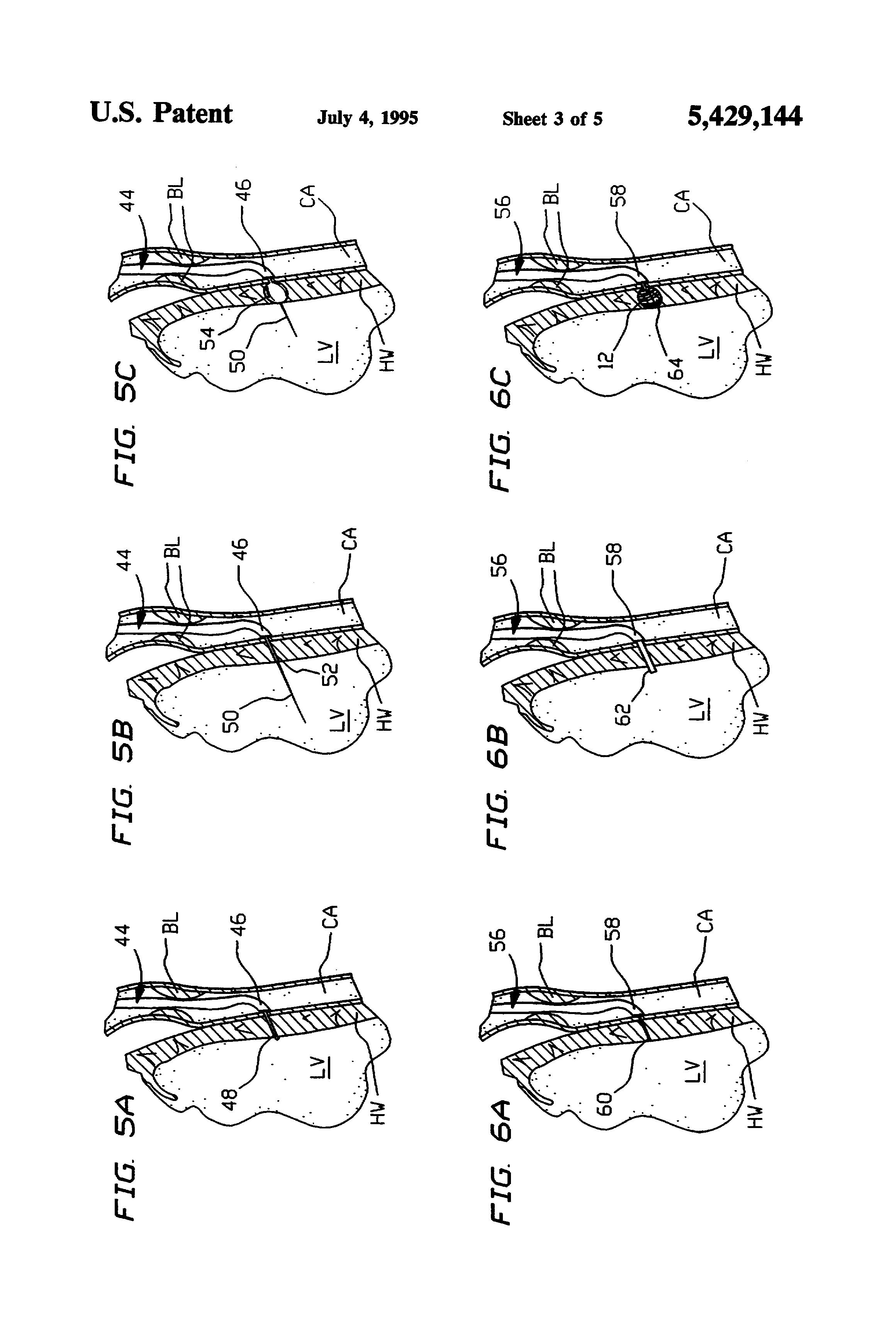 Patente US5429144 - Coronary artery by-pass method ...