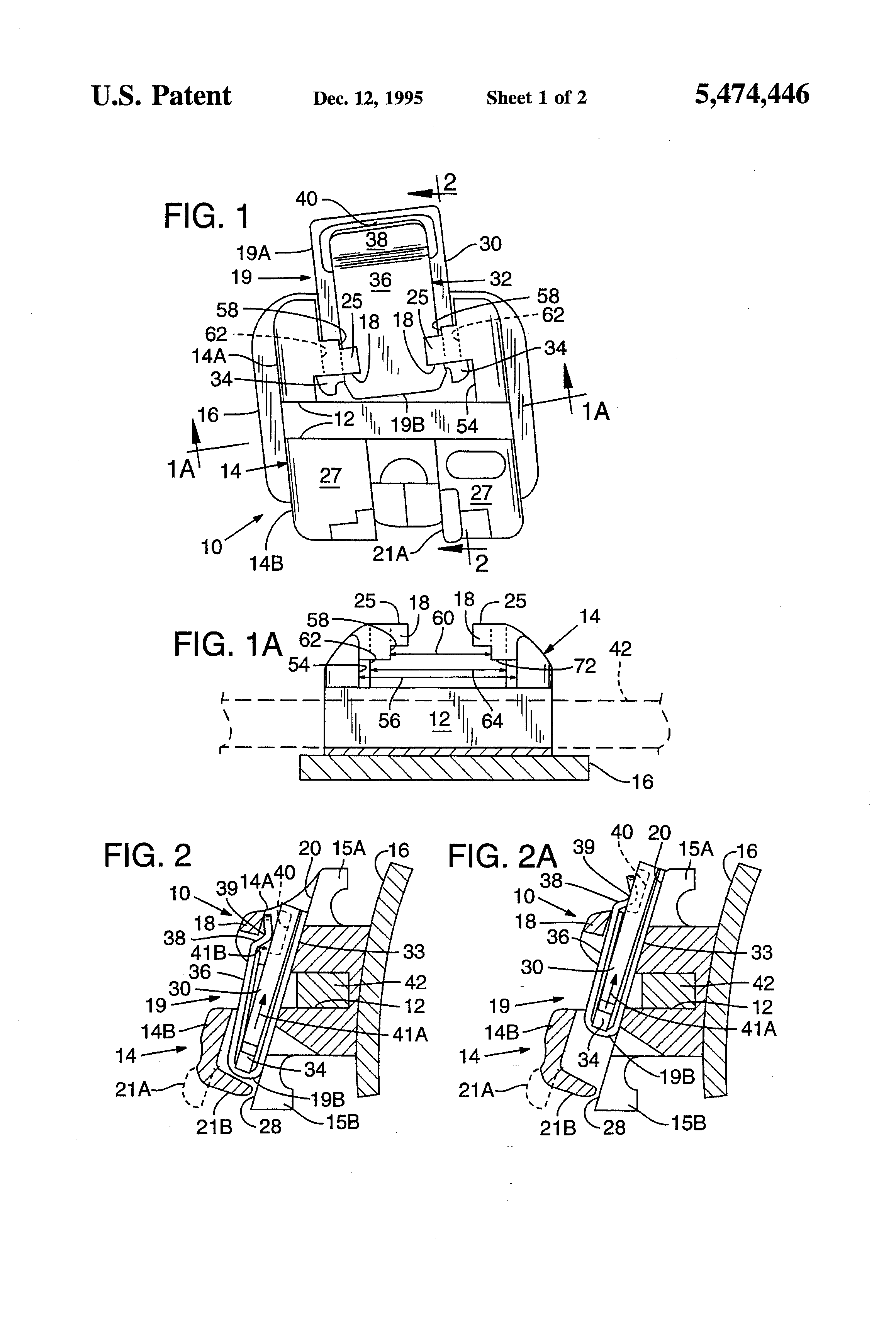 Patent US5474446 - Miniature self-locking labial bracket with cam ...