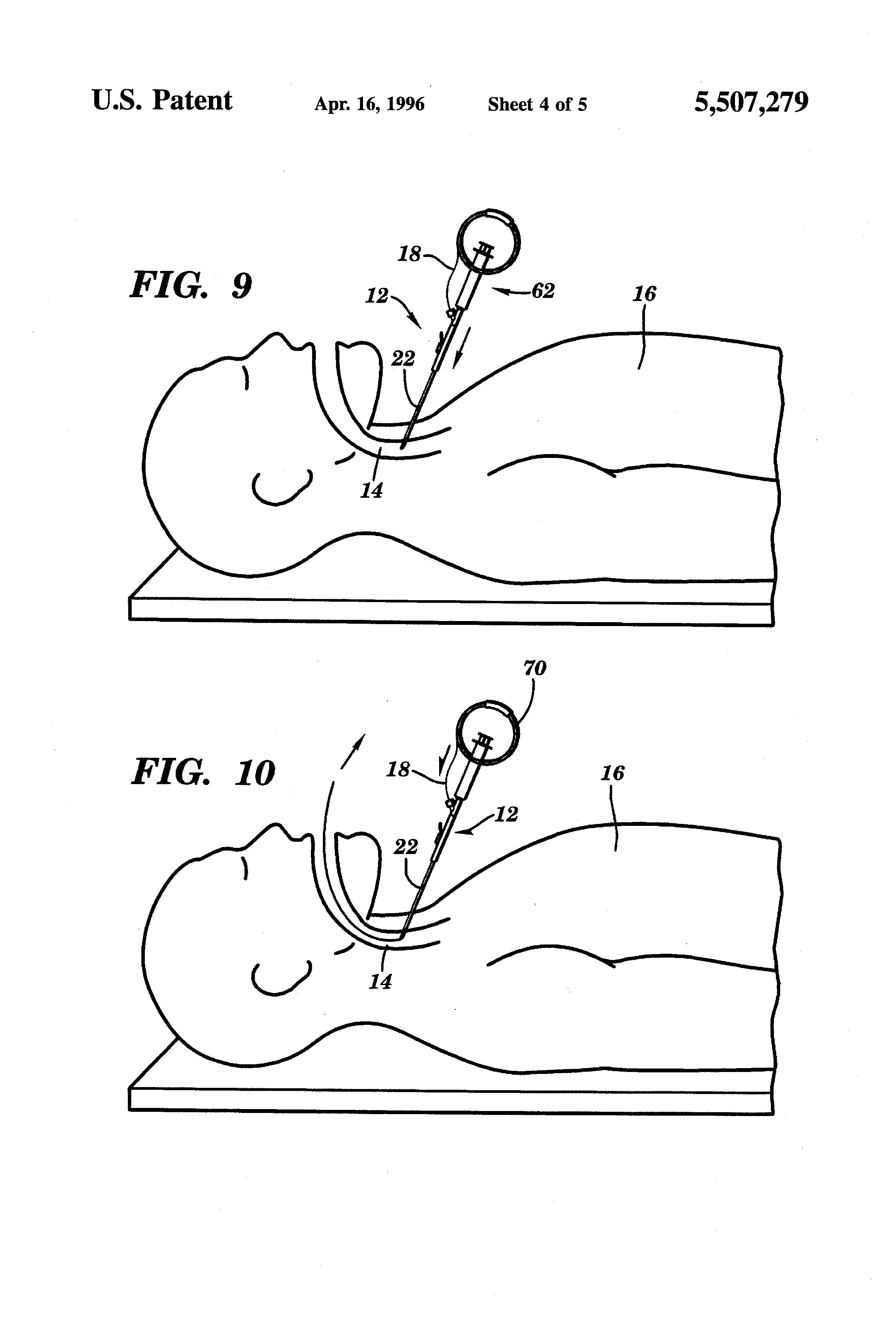 patent us5507279 - retrograde endotracheal intubation kit