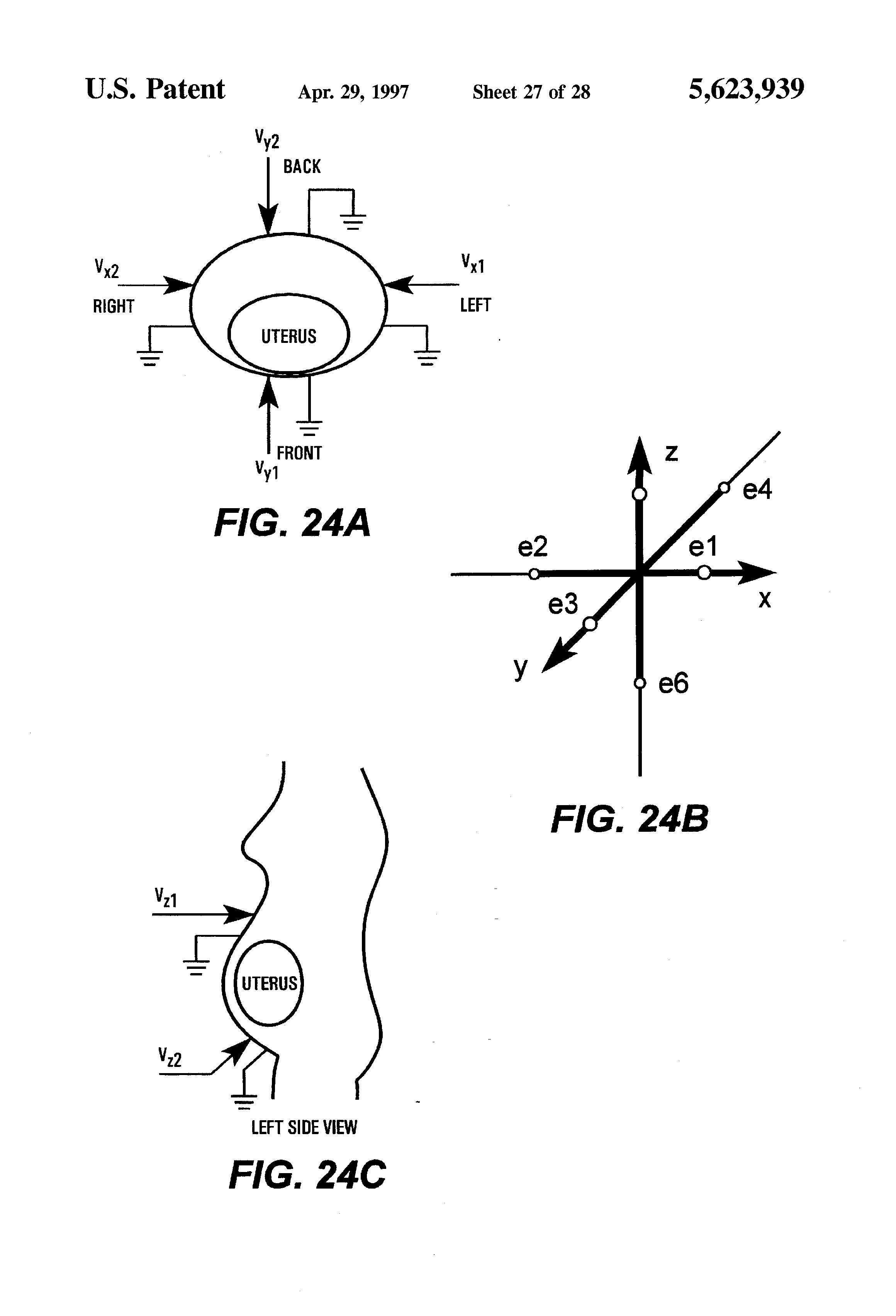 patent us5623939