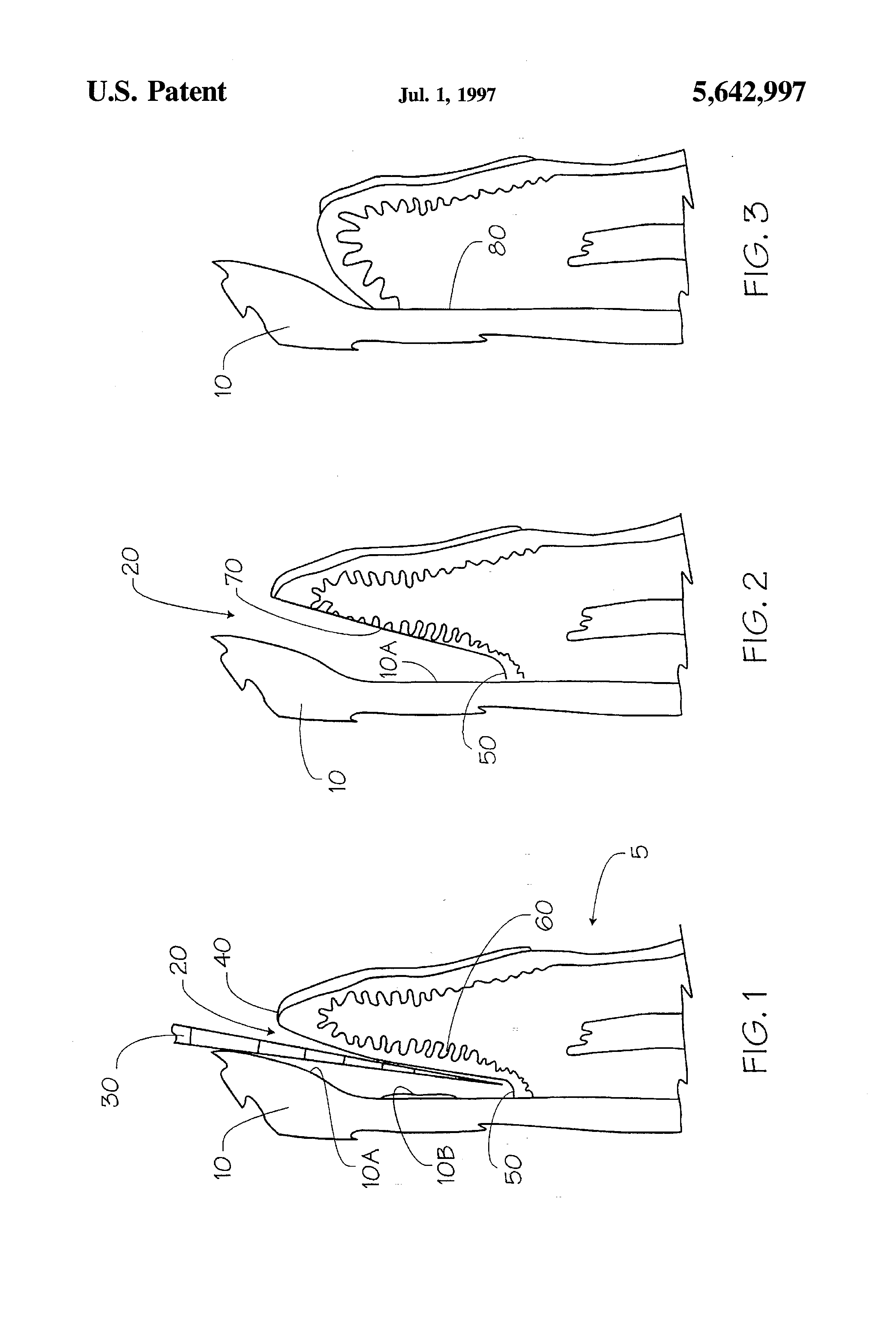 Laser excisional new attachment procedure