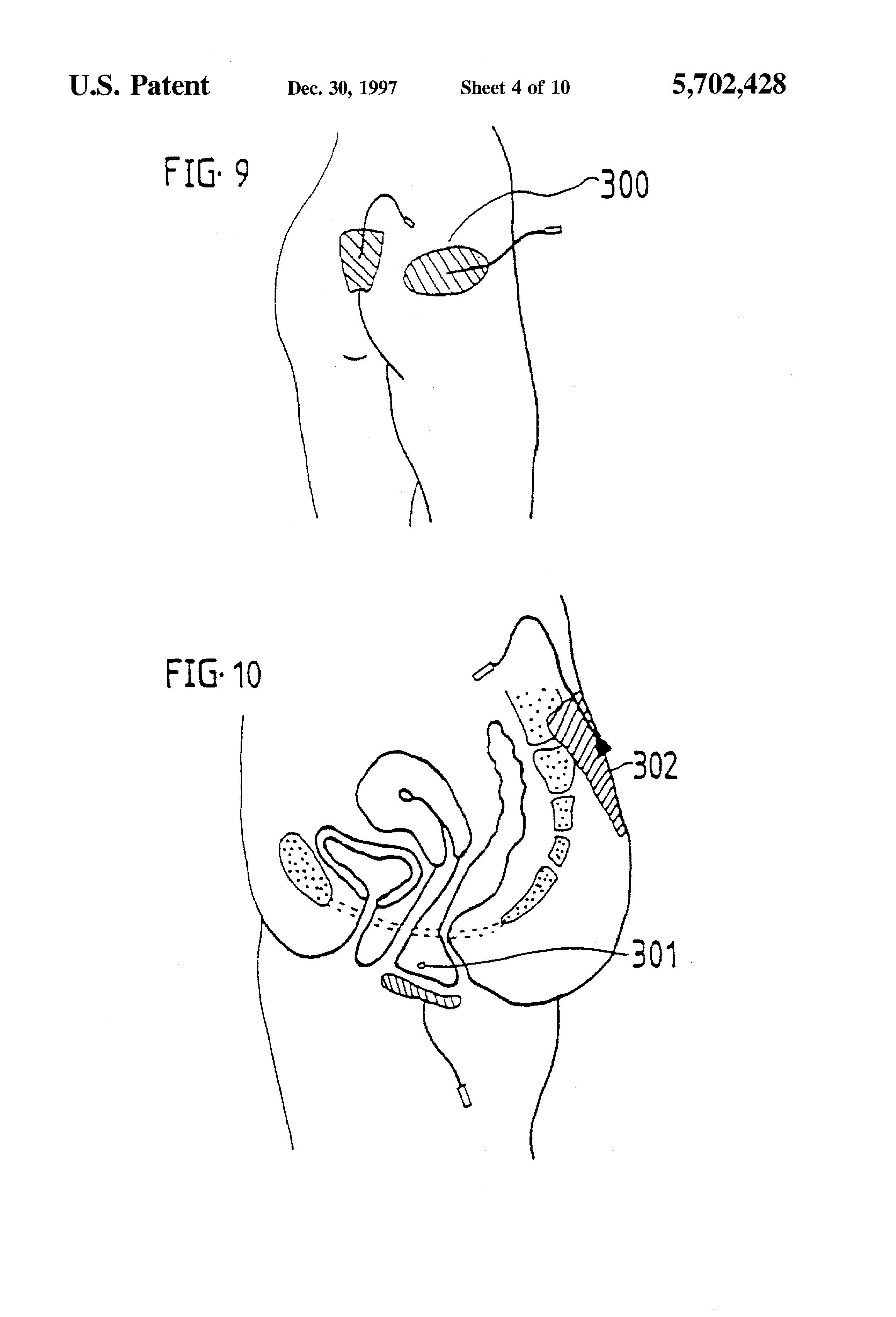 Anal stimulation instructions kind