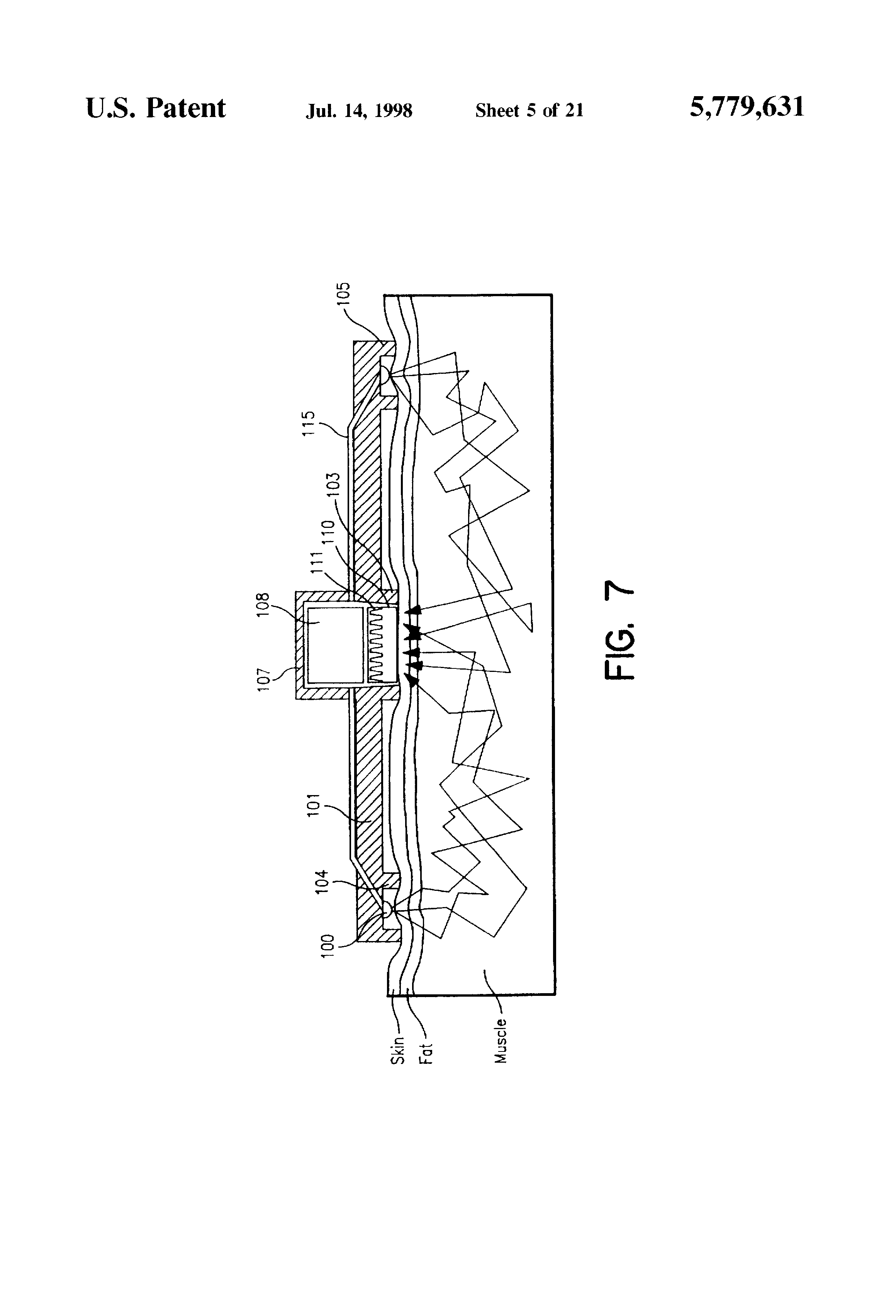 Patent Us5779631 Spectrophotometer For Measuring The Metabolic Light To Frequency Converter Tsl220 Drawing